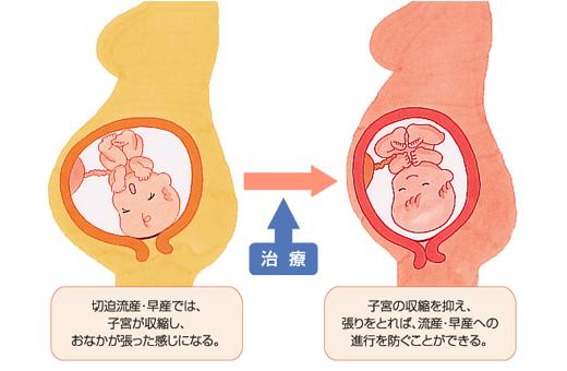 腹痛 どんな痛み 切迫流産 妊娠中に下腹部が痛むときの対処法は?流産・早産関連の下腹部痛もある?(2019年7月14日)|ウーマンエキサイト(1/3)
