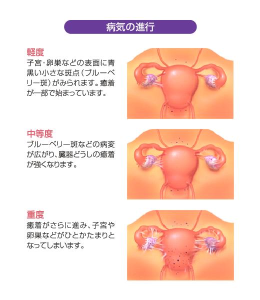 子宮 内 膜 症 原因 やりすぎ 激しい生理痛を引き起こす子宮内膜症 原因や症状、セルフチェック