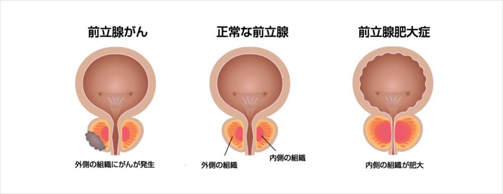 症状 前立腺 肥大